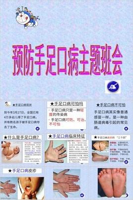 简约紫色纹理背景预防手足口病主题班会PPT模板